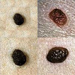 Как убирают папилломы лазером