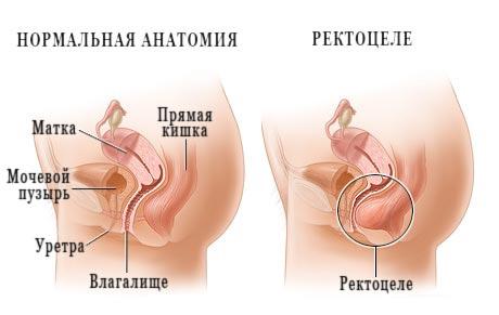 Какие венерические заболевания бывают причиной геморроя